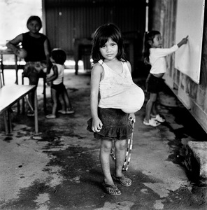 "Balloon. La Chureca, Managua, Nicaragua. From the series ""Childhood Reveries""  © Brian Shumway"
