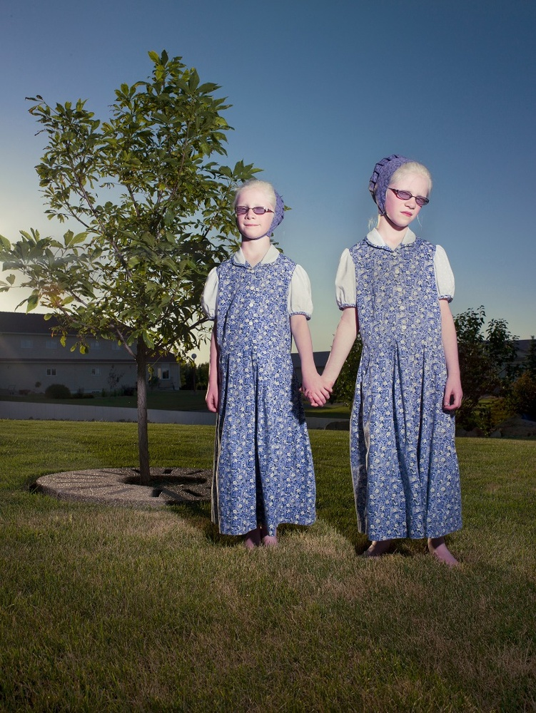 Albino Identical Twins. Acadia Hutterite Colony, Manitoba. July 2011