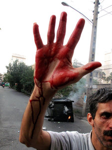 A man with the blood of Neda Agha-Soltan on his hand, after she was shot during a demonstration in which supporters of Irans defeated presidential candidate Mir Hossein Mousavi clashed with Basij Members. Thousands defied an ultimatum from supreme leader Ayatollah Ali Khamenei for an end to protests over the disputed presidential election. Tehran, IRAN - June 20, 2009 © Copyright 1979-2009 Alfred Yaghobzadeh. All rights reserved.