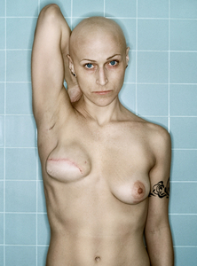Self-Portrait, Chemo 4th Cycle, 03.2006, from the Aftermath Series, © Kerry Mansfield. Grand Prize Winner, Single Image Category, Lens Culture International Exposure Awards 2011