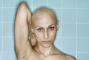 Grand Prize: Self-Portrait, Chemo 4th Cycle, 03.2006  © Kerry Mansfield