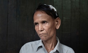 Sittwe, Myanmar, 2012. An elderly Rakhine man shows the injuries he sustained when he was attacked when his village was raided by Rohingya. © Spike Johnson
