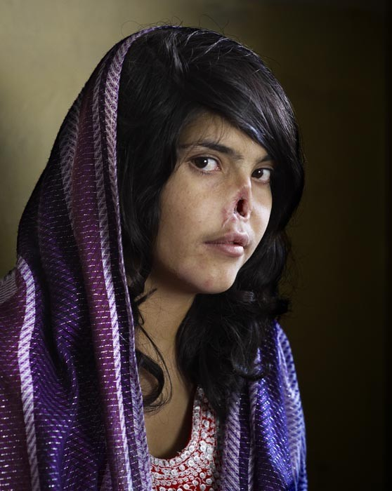 World Press Photo of the Year 2010 © Jodi Bieber, South Africa, Institute for Artist Management/Goodman Gallery for Time magazine. Bibi Aisha, an 18-year-old woman from Oruzgan province in Afghanistan, who fled back to her family home from her husbands house, complaining of violent treatment. The Taliban arrived one night, demanding Bibi be handed over to face justice, and cut off her nose.