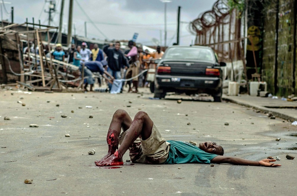 By August, the situation in the Liberian capital of Monrovia was becoming dire. Government attempts to quarantine the West Point slum led to rioting and the death of the 15 year old Shackie Kamara. Shackie was shot in the legs by security forces during the unrest.
