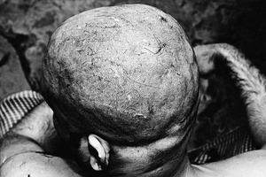 On the first day an addict gets his hair shaved in the center. © Gazi Nafis Ahmed