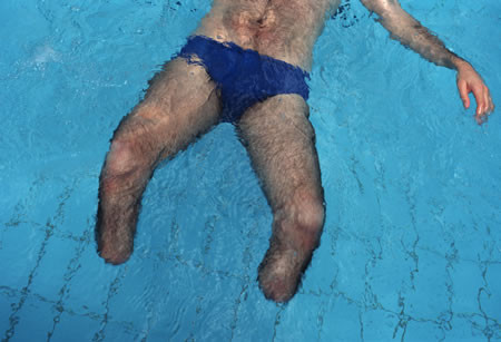 Dani Shimoni in the pool at Beit Halochem, Warrior's Home, in Tel Aviv, Israel, 1995 Born: 1960, Served: Israeli Defense Forces, Conflict: Israeli Invasion of Lebanon 1982-85. © Lori Grinker, courtesy of Nailya Alexander Gallery