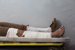 José Martins, a member of the group of Forcados of Évora, broke his leg after an attempt to wrestle the bull. Forcados get frequent injuries during their career, from broken limbs to more serious injuries like lifelong disabilities or even death. © Eduardo Leal